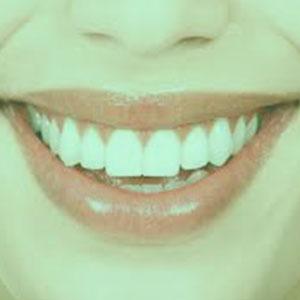 MENUS WEB ODONTO - BLANQUEAMIENTO_ clinica dental villaviciosa de odon