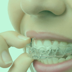 MENUS WEB ODONTO - FERULA - ATM clinica dental villaviciosa de odon