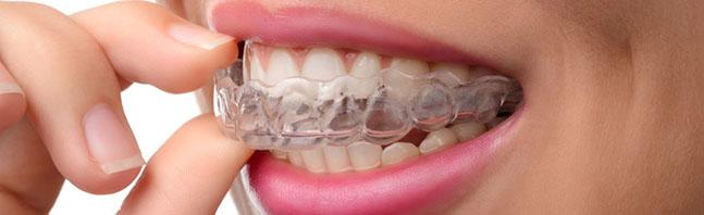 clinica dental villaviciosa de odon, odontologia_3